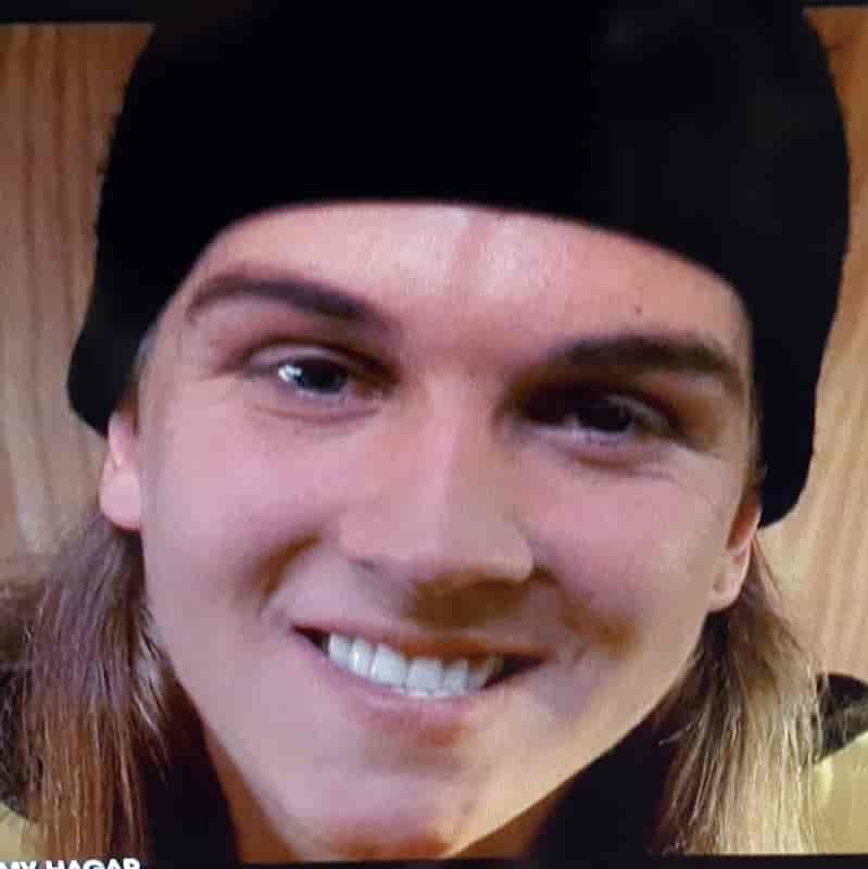 Jay and Silent Bob actor Jason Mewes has an underbite